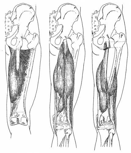 Leg Upper Muscles