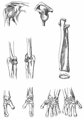 Shoulder and Arm Ligaments